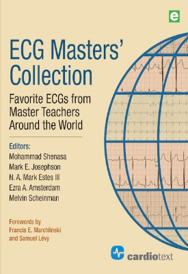 ECG Masters' Collection: Favorite ECGs from Master Teachers Around the World Shenasa 2017
