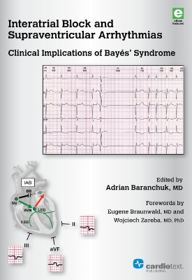 Interatrial Block and Supraventricular Arrhythmias Baranchuk, 2017