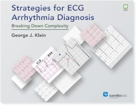 Strategies for ECG Arrhythmia Diagnosis: Breaking Down Complexity Klein, May 2016