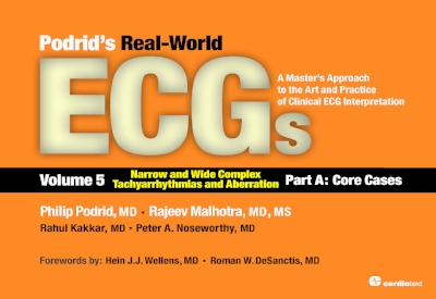 Podrid's Real-World ECGs : A Master's Approach to the Art and Practice of Clinical ECG Interpretation. Volume 5, Narrow and Wide Complex Tachyarrhythmias and Aberration – Part A: Core Cases Podrid, 2016