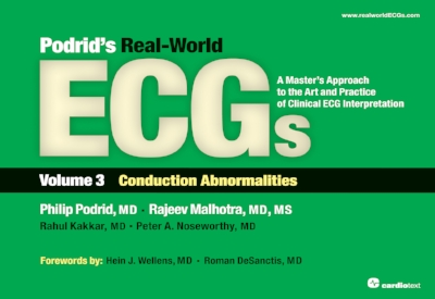 Podrid's Real-World ECGs : A Master's Approach to the Art and Practice of Clinical ECG Interpretation. Volume 3, Conduction Abnormalities Podrid, 2013