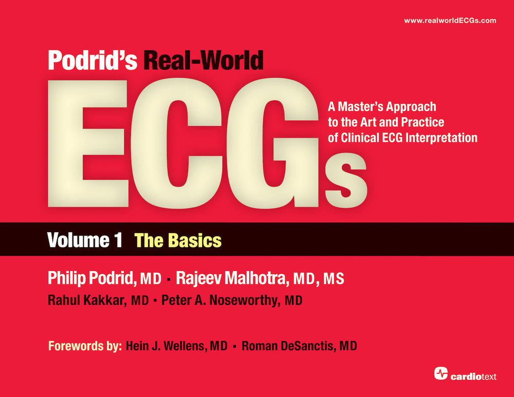 Podrids real world ecgs volume 1 the basics podrid podrids real world ecgs volume 1 the basics podrid 9781935395003 fandeluxe Image collections