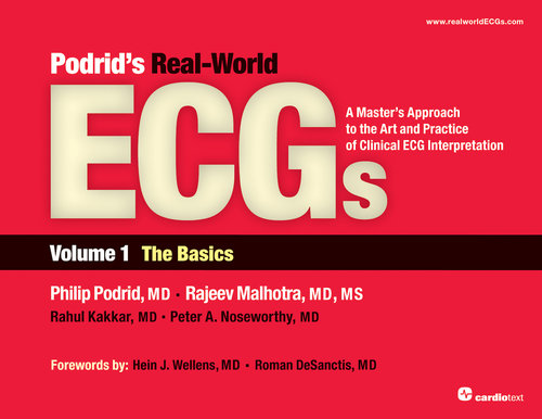 Podrids real world ecgs volume 1 the basics podrid podrids real world ecgs volume 1 the basics podrid 9781935395003 fandeluxe Images