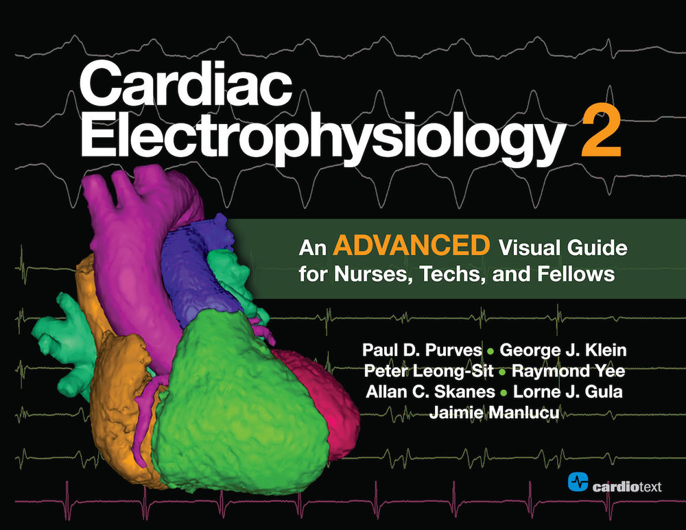 Cardiac Electrophysiology 2: An Advanced Visual Guide for Nurses, Techs, and Fellows