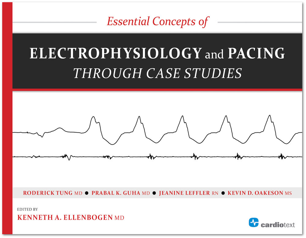 Essential Concepts of Electrophysiology and Pacing through Case Studies