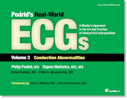 Podrid's Real-World ECGs: Volume 3, Conduction Abnormalities