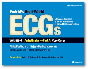 Podrid's Real-World ECGs: Volume 4, Arrhythmias