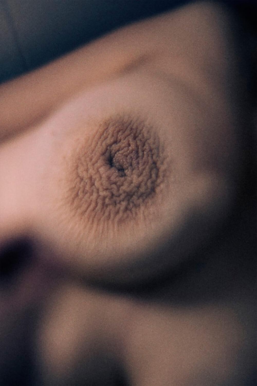 SkinPhotography-MagnusElvarJonsson003.jpg
