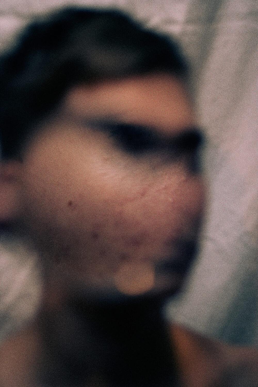 SkinPhotography-MagnusElvarJonsson004.jpg
