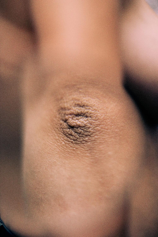 SkinPhotography-MagnusElvarJonsson008.jpg