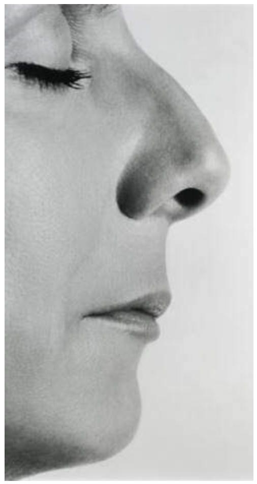 """Sophie Calle, """"Histórias Autobiográficas - Cirurgia plástica"""", 2000"""