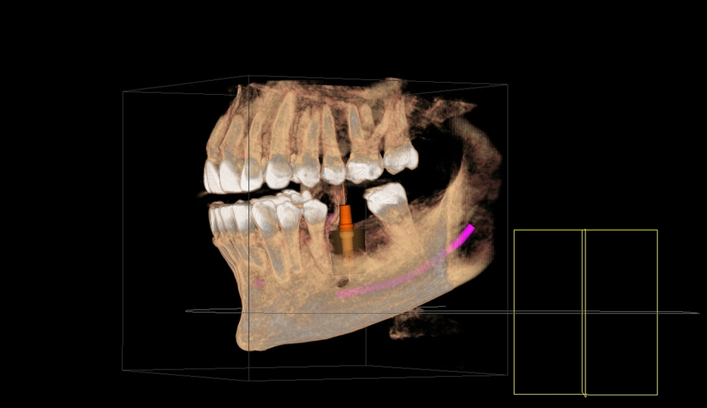 An example of a 3D scan showing how you can replace a tooth with an implant with confidence knowing the exact location of nerves and other tooth and bone morphology.