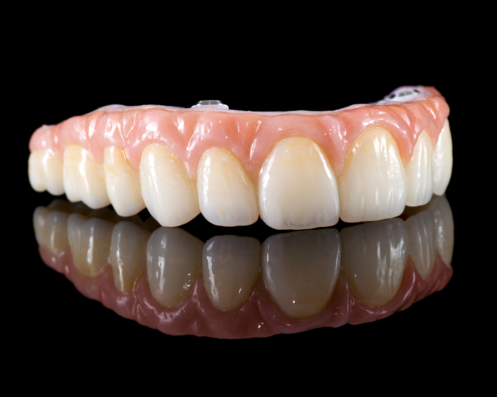 This type of restoration is called the Zurich Bridge.  It consists of a zirconia substructure with overlaying porcelain teeth.