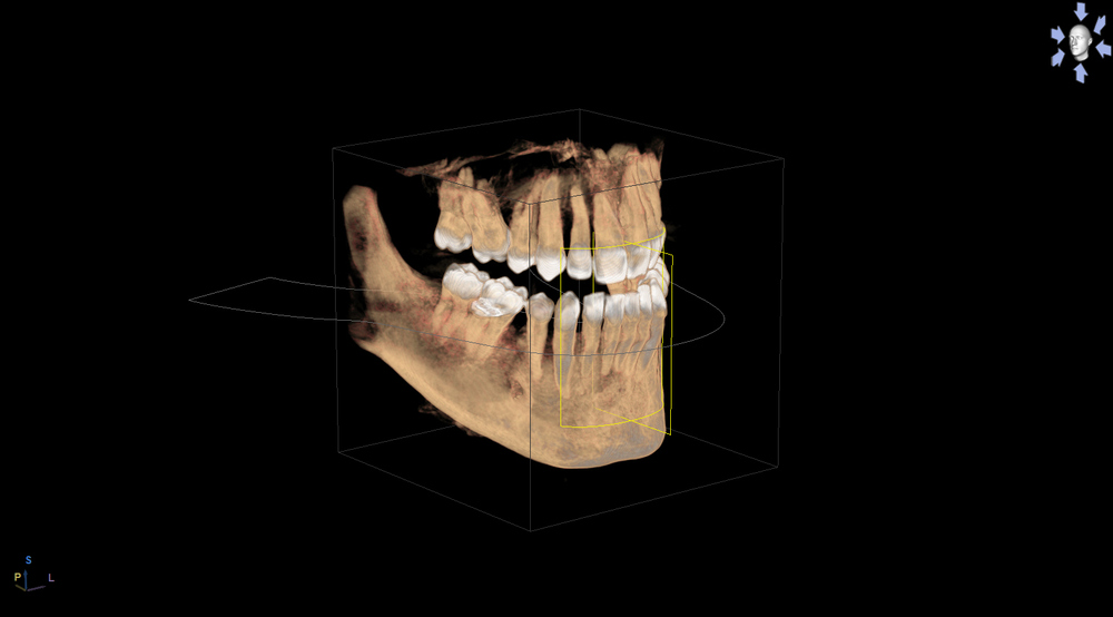 This is a sample of a 3D scan taken with our new Orthophos XG 3D cone beam scanner.