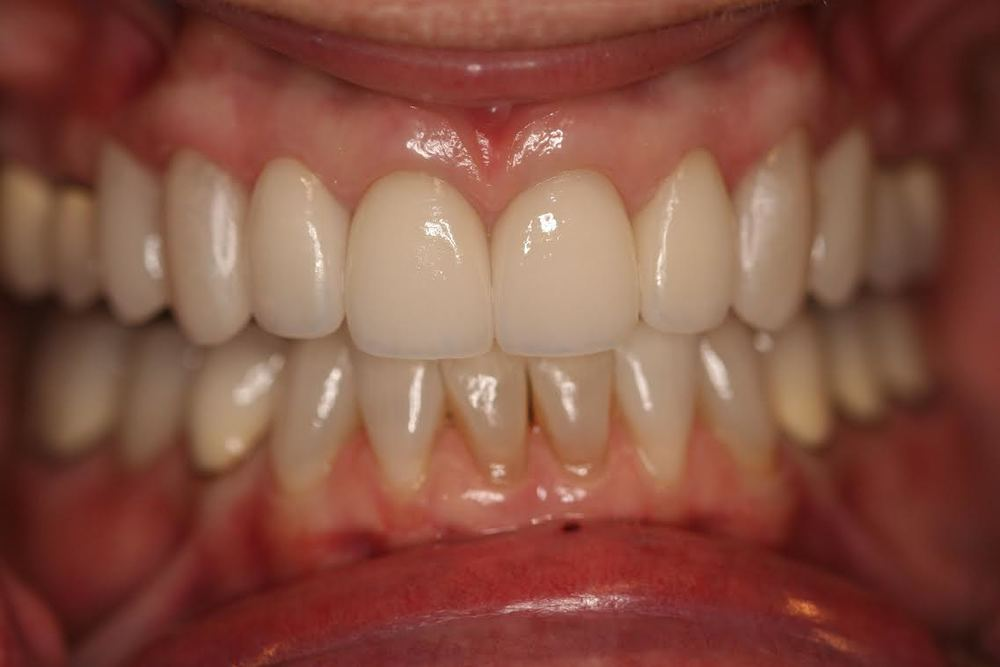 "Note that the new veneers cover the entire tooth and give the patient a more ""youthful"" smile."