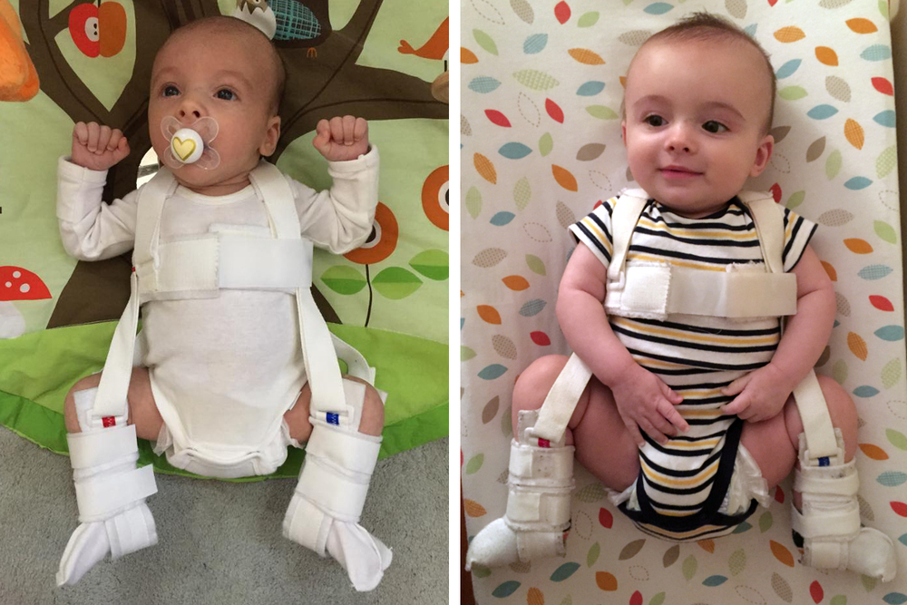 Hip Baby 2.0 - Maddox Edition /// His first day (L) and last day (R) in the Pavlik Harness.