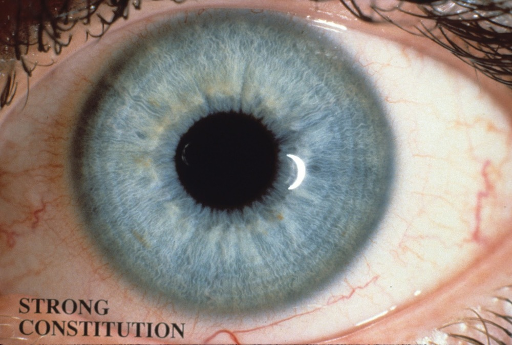 iridology_strong_constitution.jpg