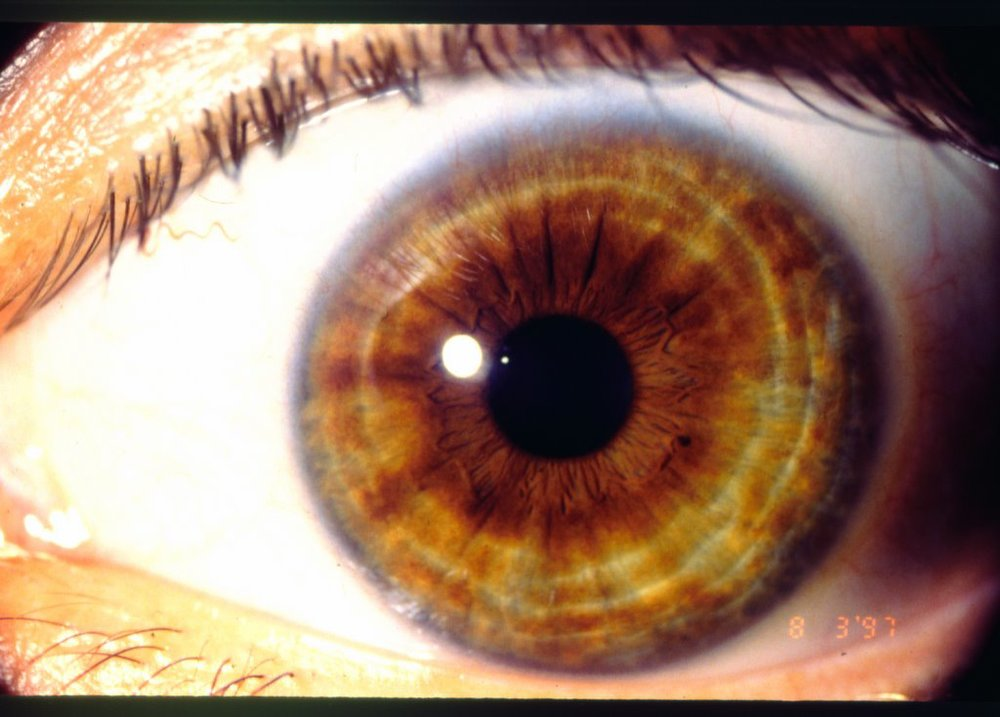 iridology vibrant health wellness