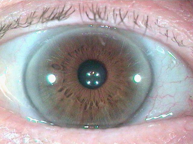 Iridology_Cholesterol_Ring.jpg
