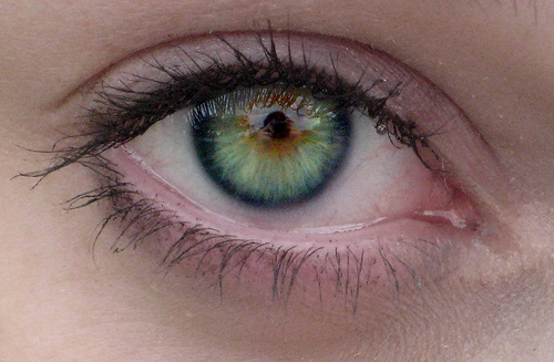 Iridology_Scurf_Rim_Skin_Ring.jpg