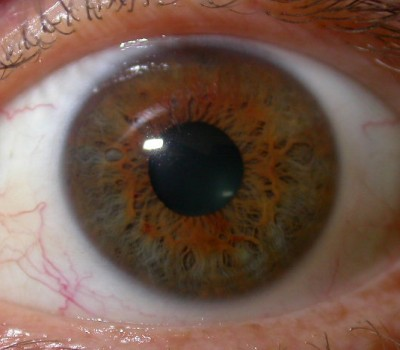Iridology_Orange_Sulfur_Weak_Constitution