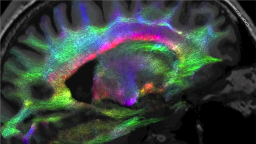 DTI tractography of the human brain.