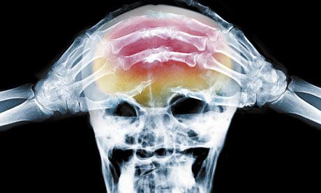X-ray-of-headache-001.jpg