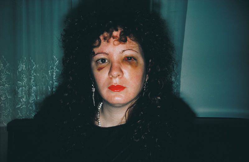 Foto: Nan Goldin Nan one month after being battered, 1984 © Nan Goldin