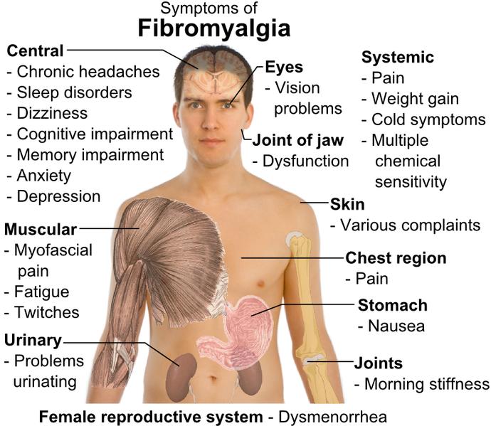 fibromialgia.png