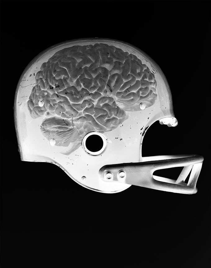 parsons_brain_x_ray_bloggg.jpg