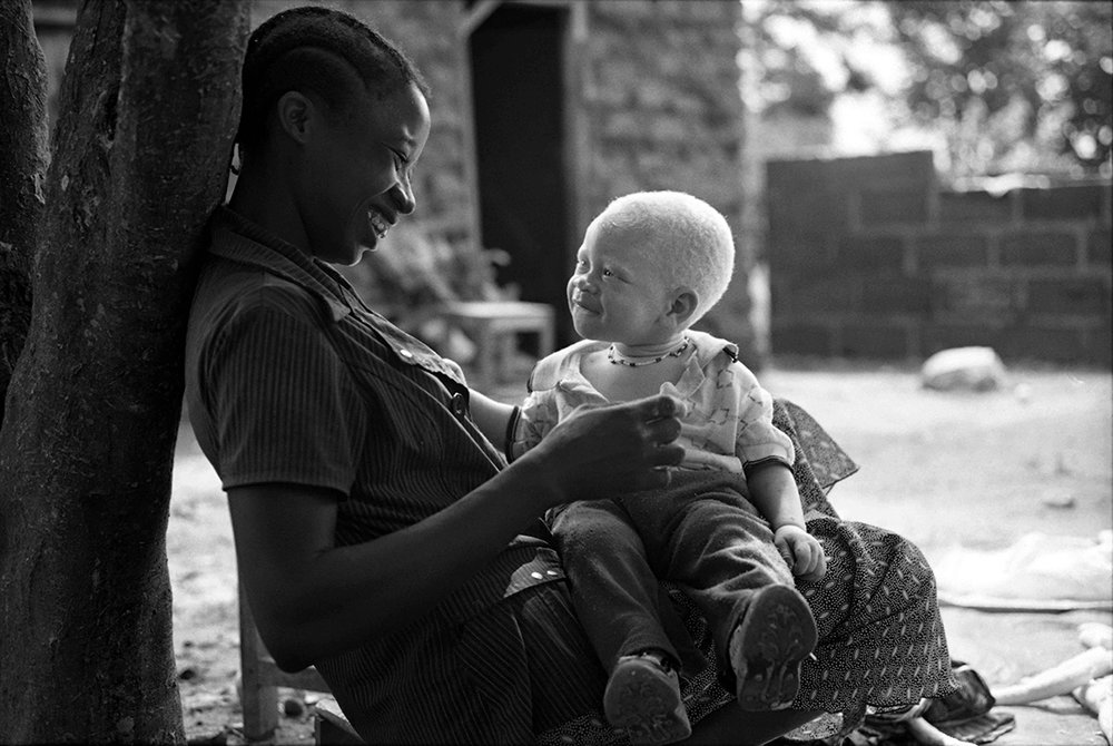 Ebrahim Mirmalek ©  Sabine with her two year old son. The father of the child abandoned them, after he realized the child was born with Albinism.