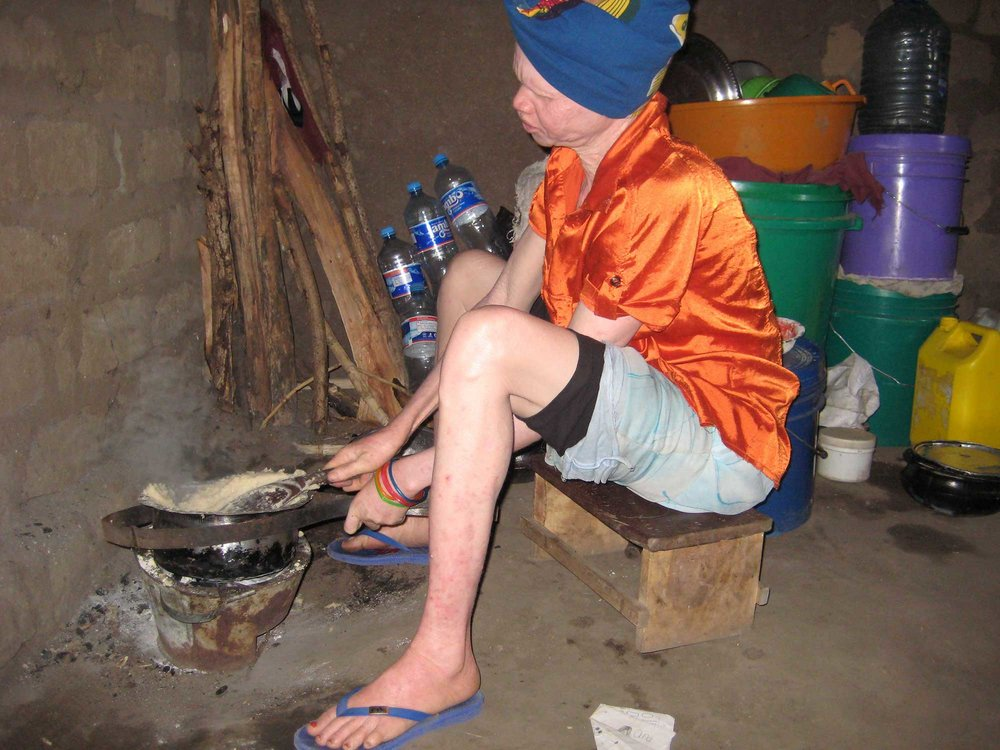 one of the family members with Albinism cooking for the family (Photo by Miango ©)