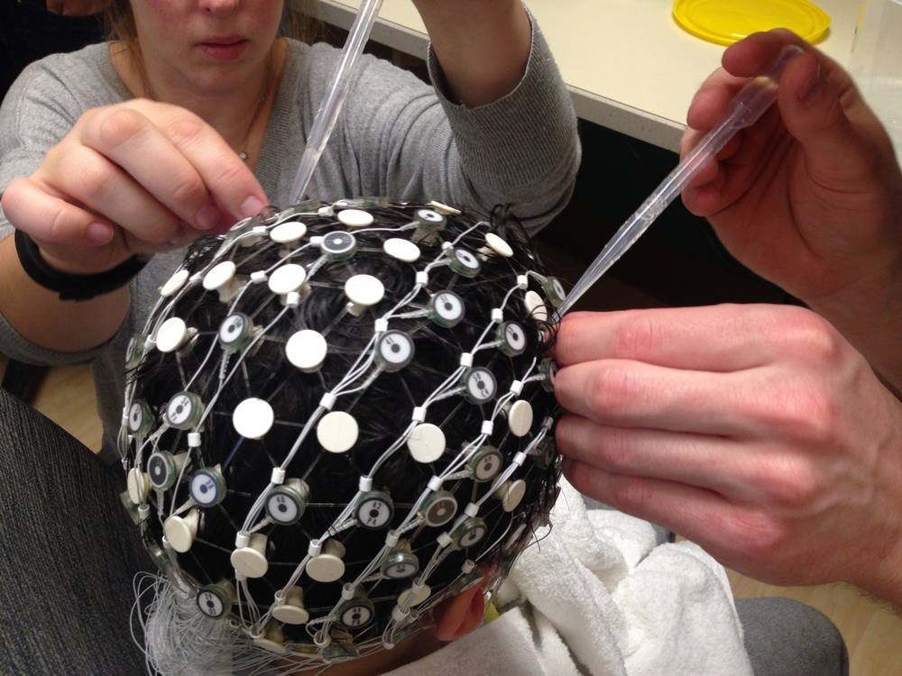 EEG Cap Setup for Concurrent EEG/fMRI