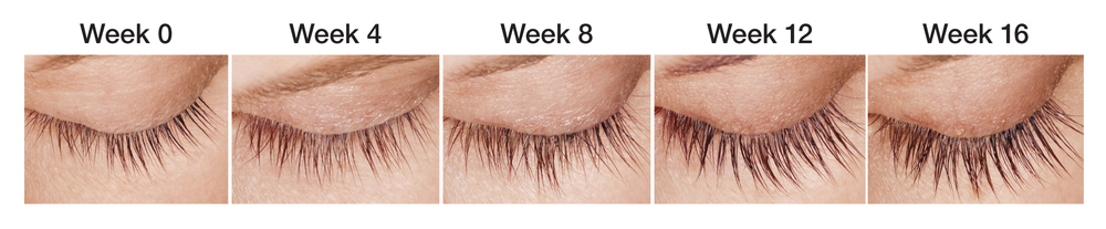 """Safety concerns: Is it a myth? """"Over 2 million prescriptions for Latisse have been filled and there have been no problems from Latisse getting into the eye. The eye is exposed to a very small amount of Latisse even when it is properly applied as directed to the upper eyelid margin using the supplied applicator. This has been demonstrated by applying a colored dye to the eyelid margin and watching its migration. Side effects from the initial studies showed less than 4 percent of people experienced redness, irritation and itching of the upper eyelid, which was reversed upon discontinuation. Obviously be careful when you apply Latisse, but do not worry."""" --- Mitchell Schwartz, MD Latisse is FDA approved and effective. It's a once-a-day treatment youapplytopically to the base of your upper eyelashes. Patients in a clinical trial saw changes in as few as eight weeks with full results after 12 to 16 weeks. It's an innovation backed by research. WhileLatisseis a treatment for inadequate or sparse eyelashes, it was developed through years of research by Allergan, a pharmaceutical leader with more than 60 years of expertise in prescription eye care products. Did you know...? Lashes and youthfulness go hand-in-hand. Studies show that by age 50 women have 50 percent less eyelashes than at age 25. WithLatisse, you can have thicker, darker lashes in just 12 to 16 weeks!!! Call us today to schedule treatment! 702-457-3888- Vivacity Clinic of Las Vegas"""