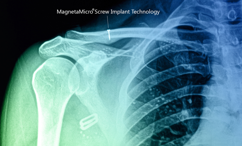 Shape, Inc. Magnetic Implant
