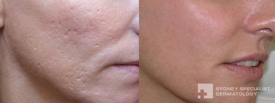 acne-scarring-before-and-after-948x356-06_0