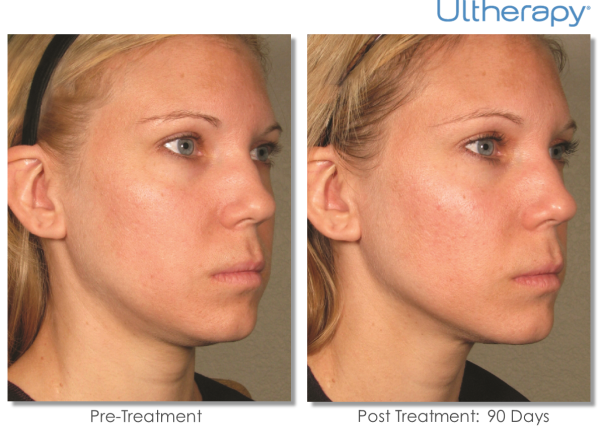 Ultherapy-P004_0Day-90Day-1TX_BEFORE&AFTER_Full-resized-600