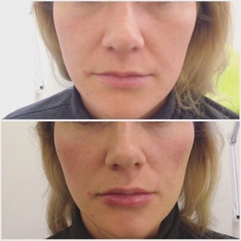 Need a proper #quick-fix before summer? A #liquidfacelift uses HA fillers and muscle relaxants to lift, define and fill out hollows where necessary. Here's a young lady with early signs of aging who had cheek fillers to define the jawline and reduce nasolabial folds, lip fillers for some subtle volume, and HA under-eye hollow reduction, BOOM, 10 years off in 10 minutes. 💥  @bewellklinikken  #facelift #antiageing #kosmetiskmedisin #lipinjections #fillers
