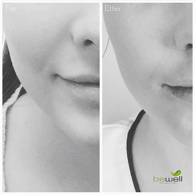 Cheek fillers on this beauty for a little definition, more defined jawline and reduction of nasolabial folds 😘 Happy Humpday! @bewellklinikken #cheekfillers #cheekbones #definition #countour #liquidfacelift #filler