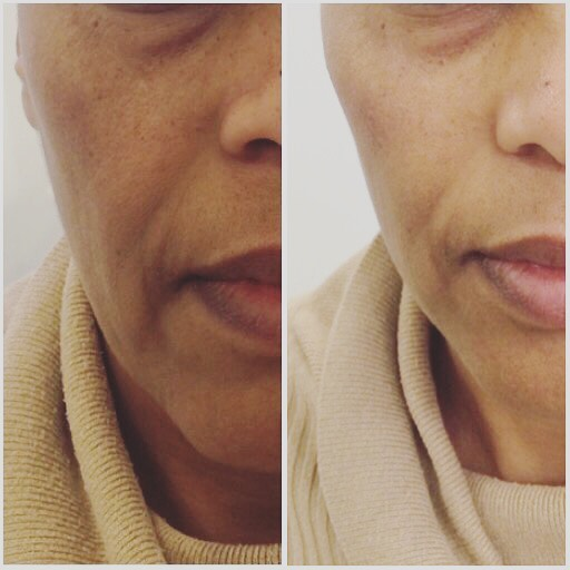 My liquid facelift includes fillers and muscle relaxants to lift, contour and reshape the face naturally. This lady had a tear trough, mid cheek, and nasolabial fold correction using only 2ml product. Contact @bewellklinikken for a consultation. Happy Friday! ❤️ #fillers #liquidfacelift #naturalresult #antiageing #sandnes #stavanger #antialdring