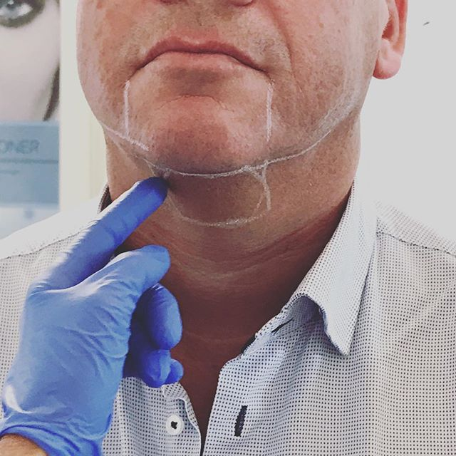 """Stubborn sub-mental fat, otherwise known as the """"double chin"""" has been a hard thing to correct without liposuction or surgery, until now! I offer a non-surgical, skin tightening, and permanent treatment option for both the neck and body. Come see me why don't ya. 😘  @bewellklinikken #doublechin #dobbelthage #fettreduksjon #permanent #antiageing #stavanger #sandnes"""