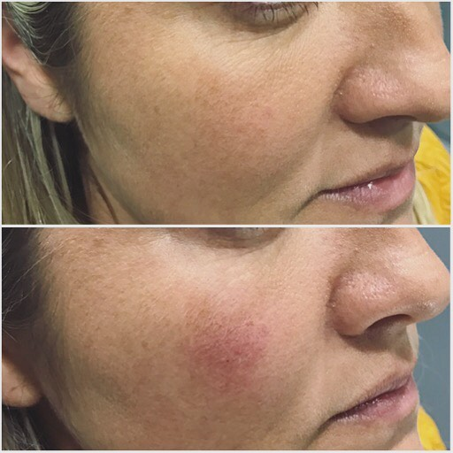 As we age the orbital rim and eye-socket area is one of the earliest places we notice volume loss and displacement. By correcting the teartrough here and the lateral orbital rim, we also manage to better mid-cheek volume, nasolabial folds and marionette lines, all in one treatment. Happy Friday people! Love, Rolah ❤️ #teartroughfillers #teartrough #liquidmagic #antiageing #hyaluronsyre #ha #fillers #filler #tgif #happyfriday