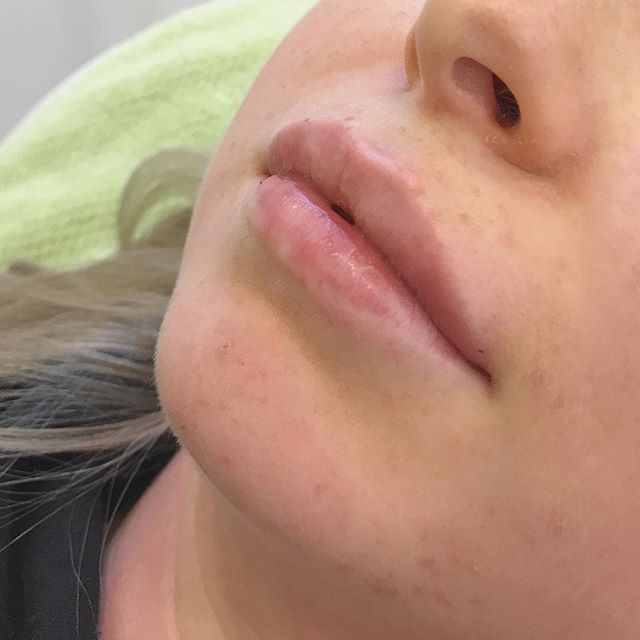 Beautiful lips in a jiffy, takes about 15min, no downtime, and  lasts up to 6months 💋 @bewellklinikken  #lips #lepper #leppebehandling #lipfillers #leppefiller #HA #pout #kyssemunn #hotlips