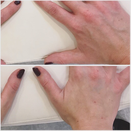 Pre and post Radiesse hand-treatment 👐🏼 Instant rejuvenation and younger appearance of hands! Full effects reached after 6-8 weeks due to production of new collagen, lasts 12-16 months 🙌🏼 We still offer 2000kr off this treatment if your interested in trying before the end of Sept 👌🏽 @bewellklinikken  #radiesse #semipermanent #filler #handtreatment #antiaging #hånbehandling #yngrehender