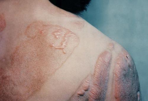 Radiation burn scars, Hiroshima, 1945.