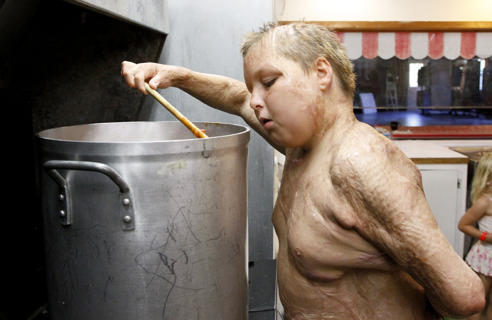 Austin Souder, 13, of Odessa, Texas, peers into a large pot of chili in the kitchen at Camp Phoenix on Wedesnday, Aug. 21, 2013, at Lake Samish in Bellingham. Austin sustained burns on most of his body, including the top of his head, during a house fire when he was 4-years-old.