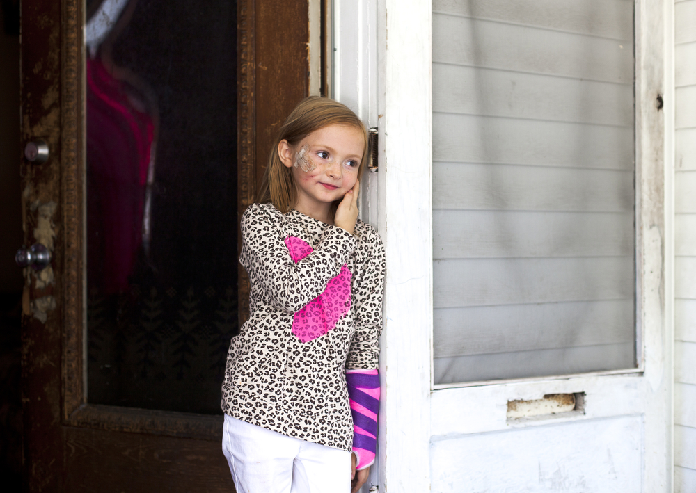 Alecia Finch, 7, stands on her porch Tuesday, Sept. 15, 2015, in Jackson, Mich. Alecia was one of two children bitten by a pit bull on Sept. 2. She had plastic surgery on her face and is recovering from a fractured left arm. Alecia said she still likes puppies but larger dogs scare her. (Nick Gonzales | Mlive.com)