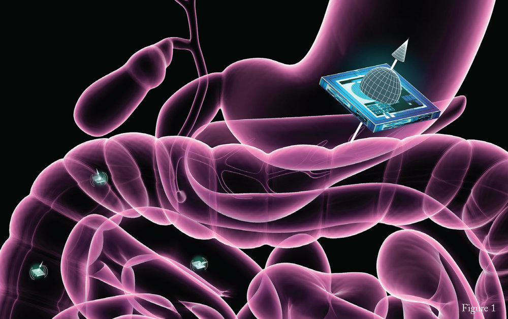Figure 1: Illustration of an ATOMS microchip localized within the gastrointestinal tract. The chip, which works on principles similar to those used in MRI machines, is embodied with the properties of nuclear spin. Credit: Ella Marushchenko for Caltech