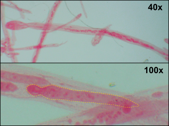 Top: Mature nematogen.  Bottom: Developing nematogen (outlined in yellow) inside the axial cell of a mature individual. Note: all specimens were stained pink to enhance detail. Image credit: Seth Goodnight