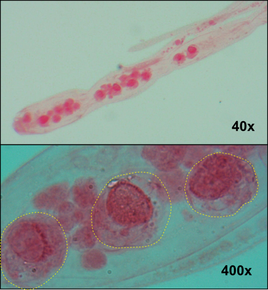 Top: Mature rhombogen.  Bottom: Mature infusorigens (outlined in yellow) inside the axial cell of a mature individual. Note: all specimens were stained pink to enhance detail. Image credit: Seth Goodnight